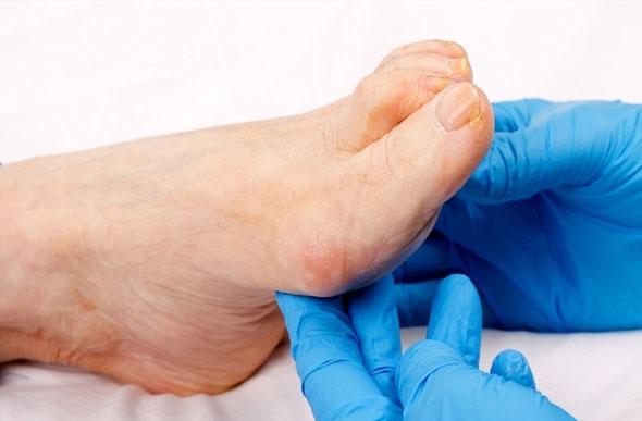 De de sangue tratamento de tornozelo entorse coágulo